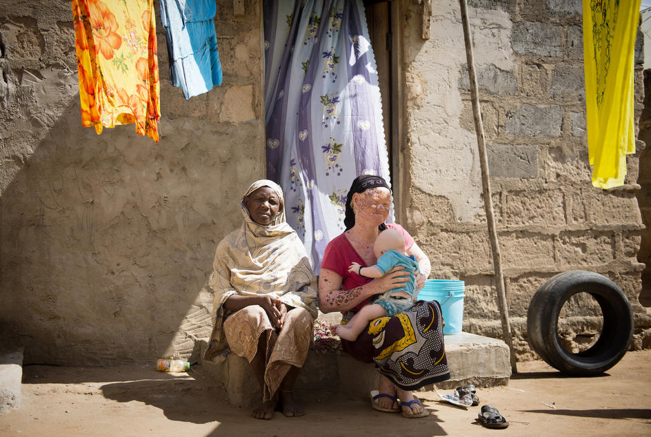 Fatouma, 35-years-old, an albino woman at right, sits with her mother, Fatouma's 5-month-old son, Ayubu, sits on her lap outside their house in their compound in Temeke Municipality of Tanzania